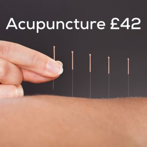 Acupuncture £42
